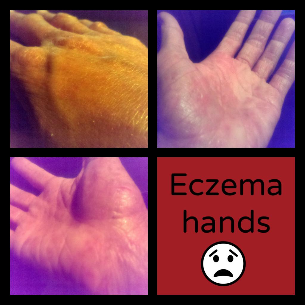 eczema, hands, dry, cracked, peeling, pain, breakout, wellness